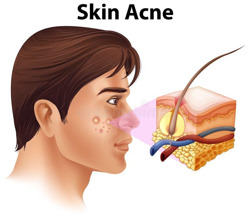 Un jeune homme avec le problème d'acné illustration libre de droits