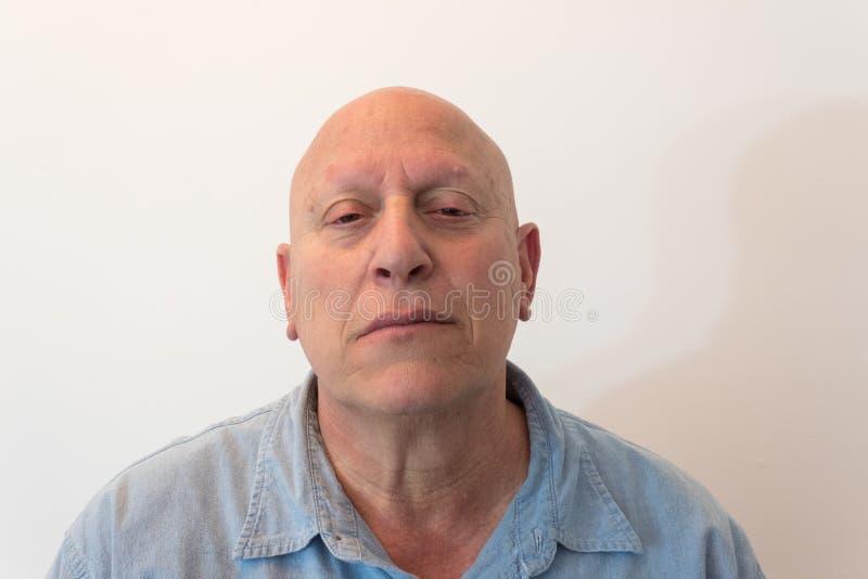 Un más viejo hombre dirige detrás con la mala actitud, calva, alopecia, quimioterapia, cáncer, en blanco imagen de archivo