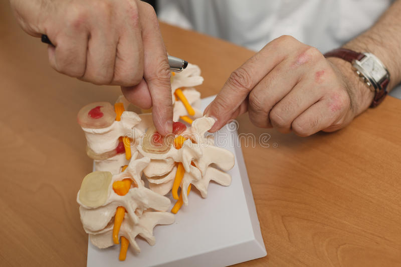 Un modello della spina dorsale nei heands di medico Medico che parla con il paziente fotografia stock