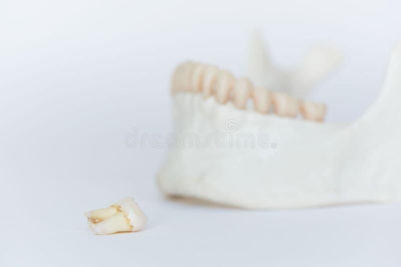 Un modelo molar extraído del mandíbula del ond del diente de la sabiduría foto de archivo