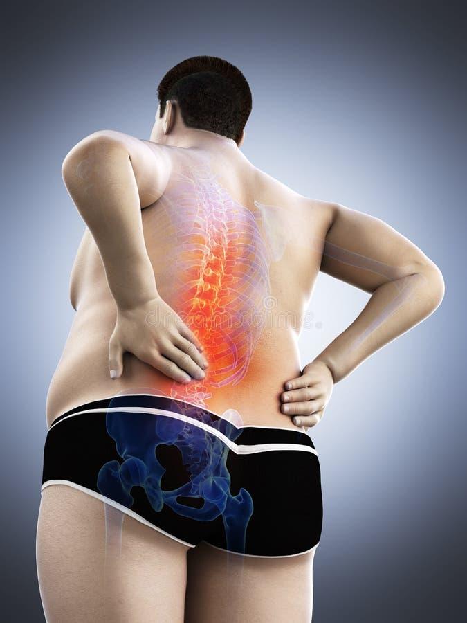 Un obeso sirve la parte posterior dolorosa ilustración del vector