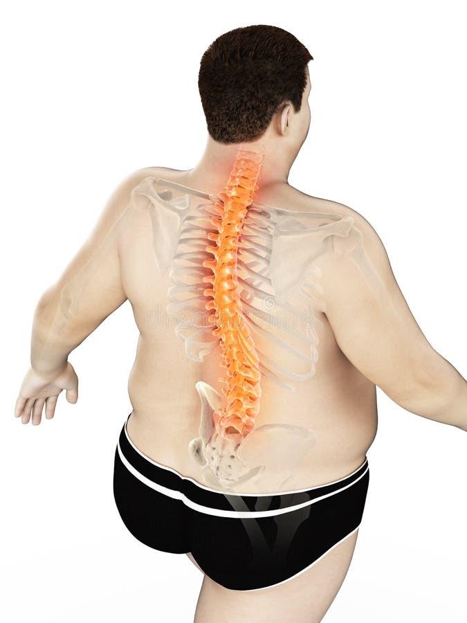 Un obeso sirve la parte posterior dolorosa libre illustration