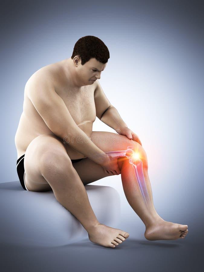 Un obeso sirve la rodilla dolorosa ilustración del vector