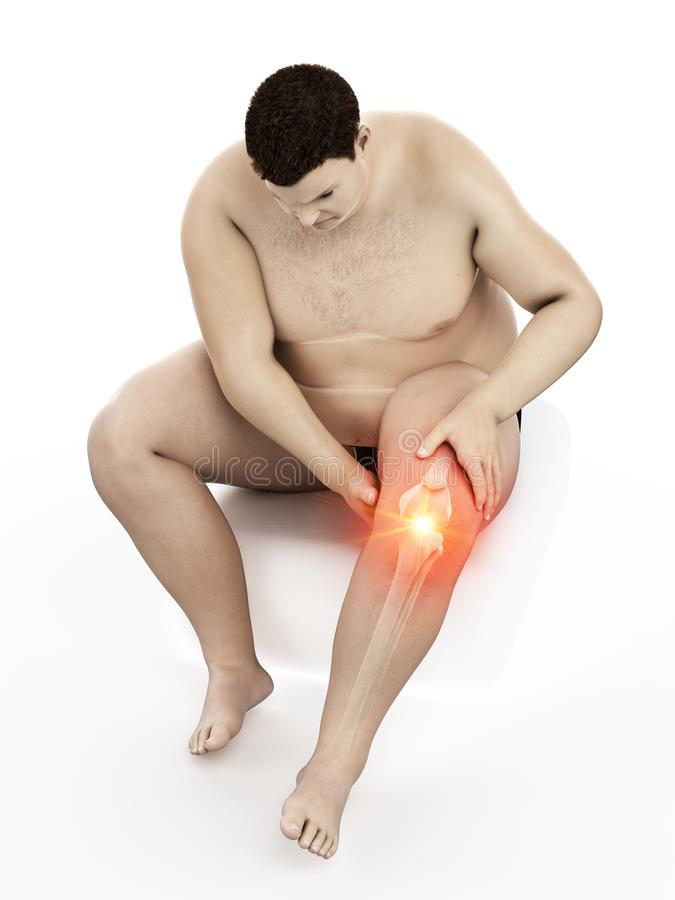 Un obeso sirve la rodilla dolorosa libre illustration