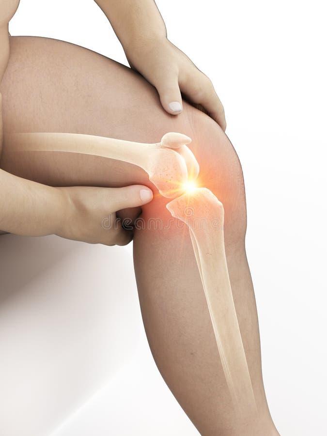Un obeso sirve la rodilla dolorosa stock de ilustración