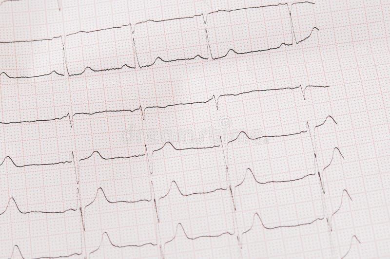 Un pedazo de electrocardiograma fotos de archivo