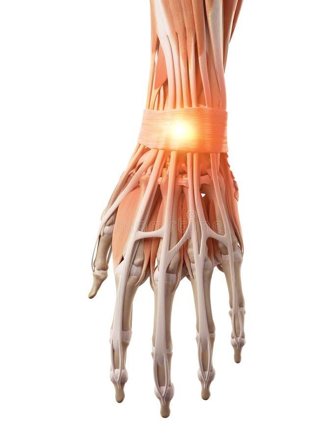 Un poignet douloureux illustration de vecteur