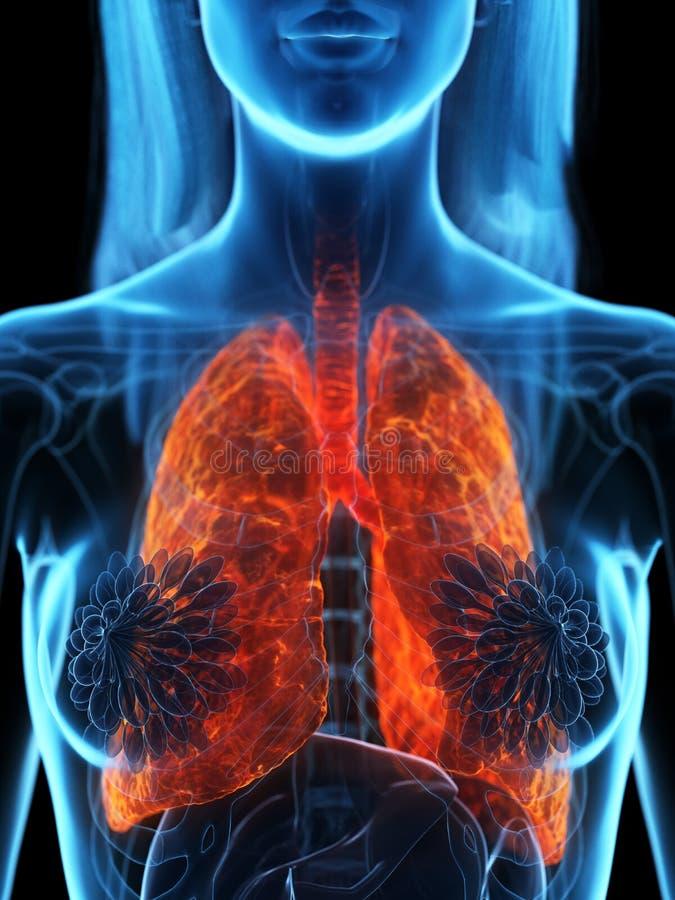 Un polmone malato royalty illustrazione gratis