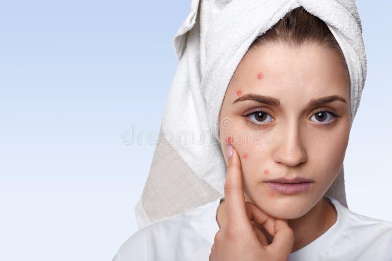 Un ritratto della giovane donna che hanno pelle di problema e del protettore immagine stock
