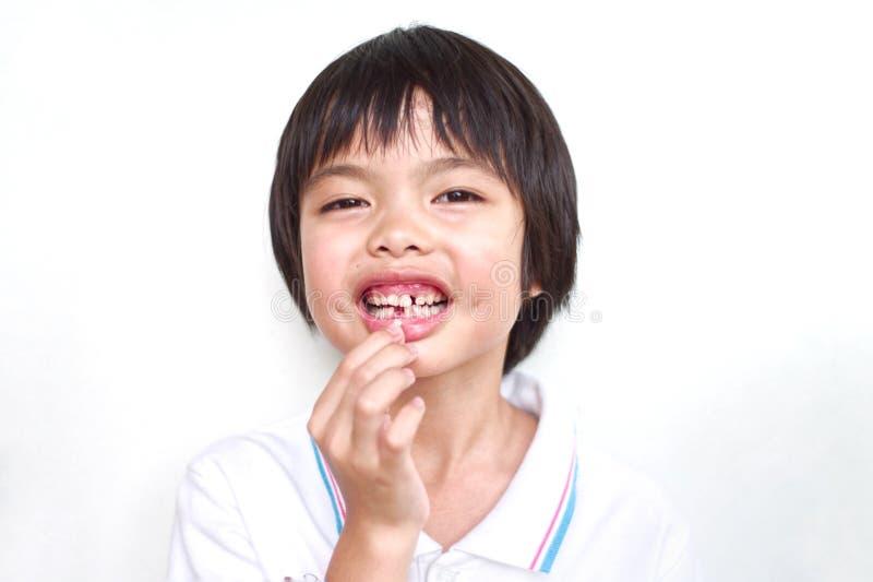 Un ritratto di 7 anni della ragazza asiatica ha perso il suo primo dente di latte con fondo fotografia stock
