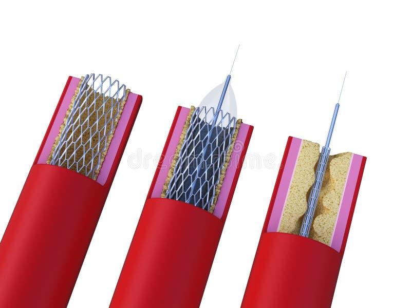 Un stent étant placé illustration libre de droits