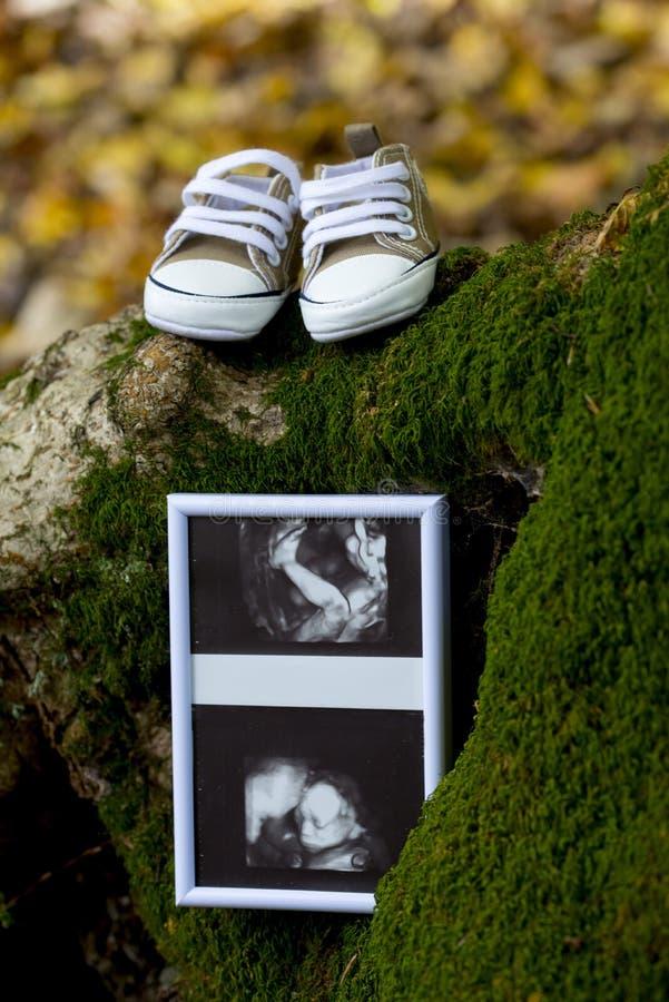 Un ultrasuono e scarpe del ` s del bambino immagini stock