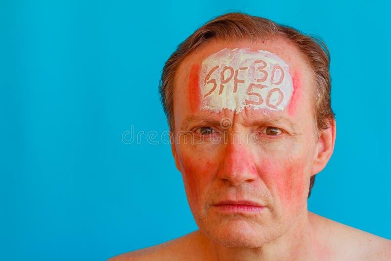 Un uomo ha un eritema solare perché non ha messo 30 o 50 alti fotografia stock