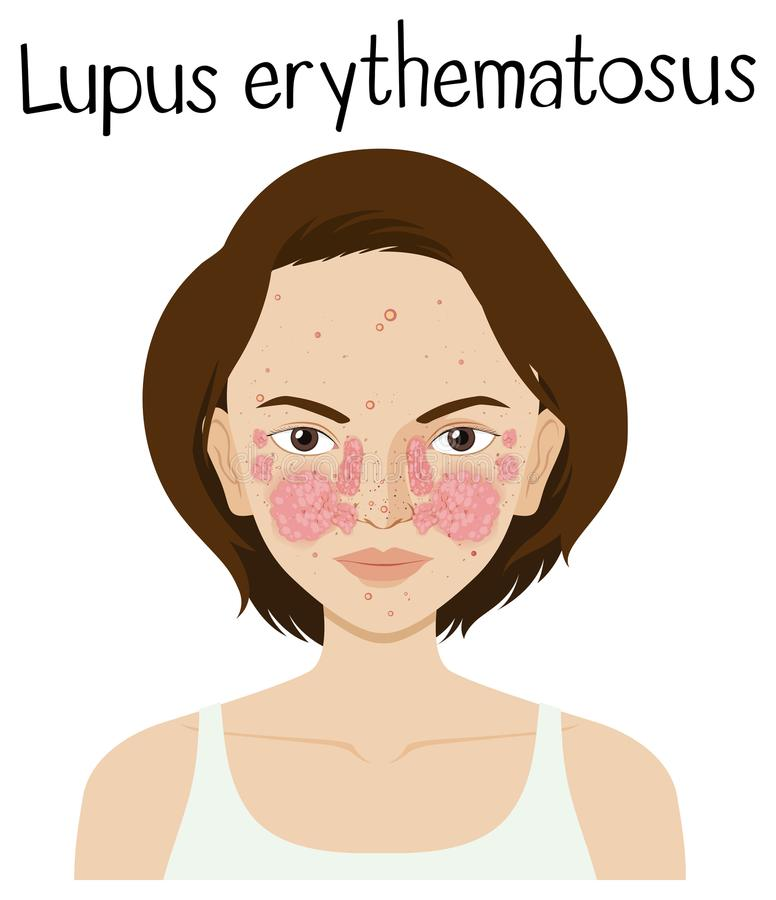 Un vecteur de Lupus Erythematosus illustration libre de droits