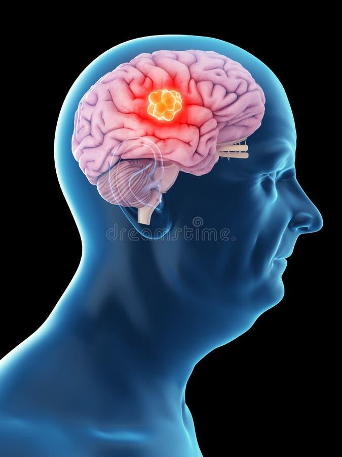Un viejo sirve el cáncer de cerebro ilustración del vector