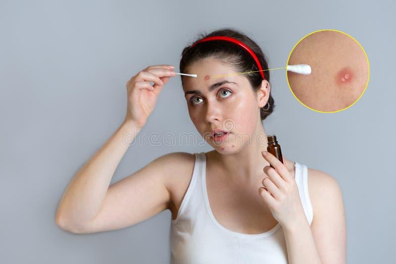 Una bella giovane donna con acne sul fronte, si applica sull'acne della cura dei brufoli Immagini ingrandette di acne Il concetto immagini stock libere da diritti