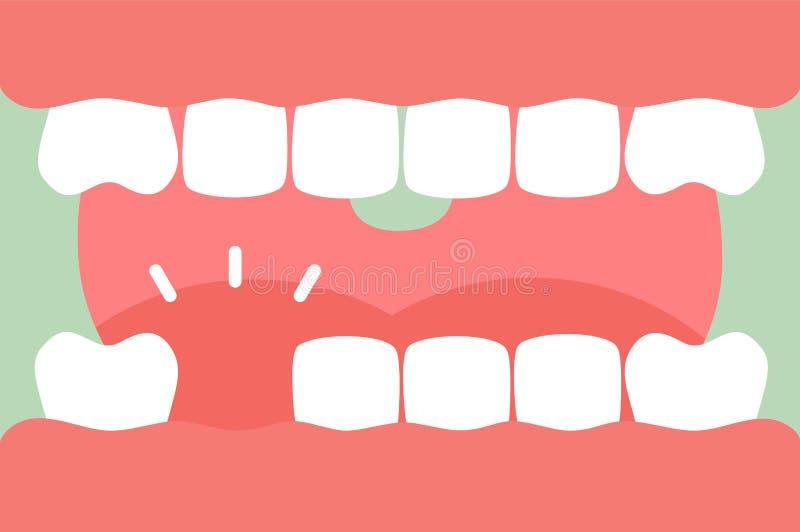 Una bocca aperta con i forte denti e lingua e dente mancante illustrazione di stock