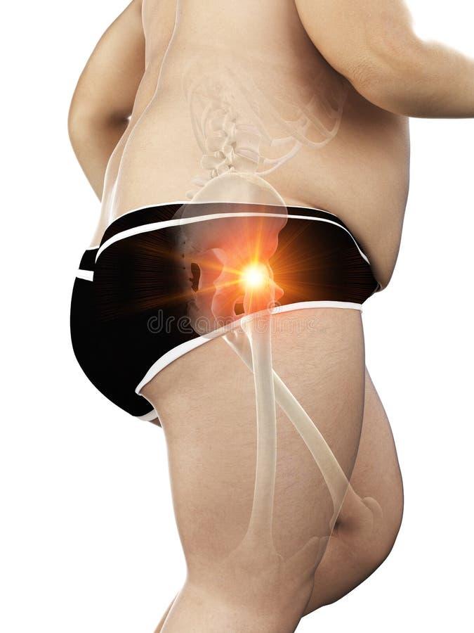 Una cadera dolorosa de los corredores obesos ilustración del vector