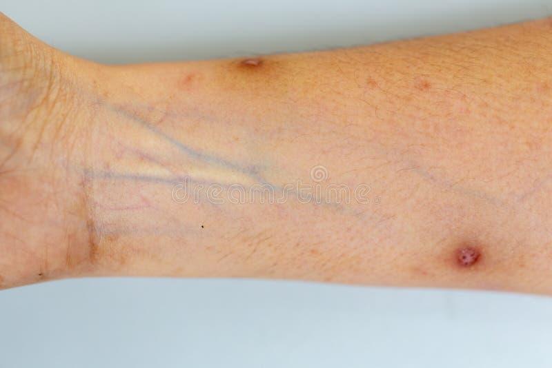 Una comprobación del tejido, nervios, tendones as mano fotos de archivo
