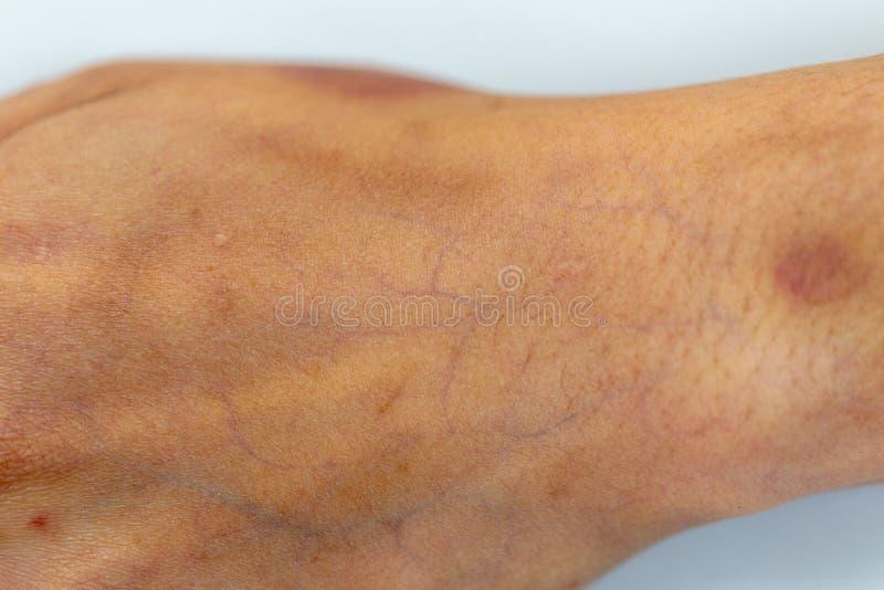 Una comprobación del tejido, nervios, tendones as mano fotografía de archivo libre de regalías