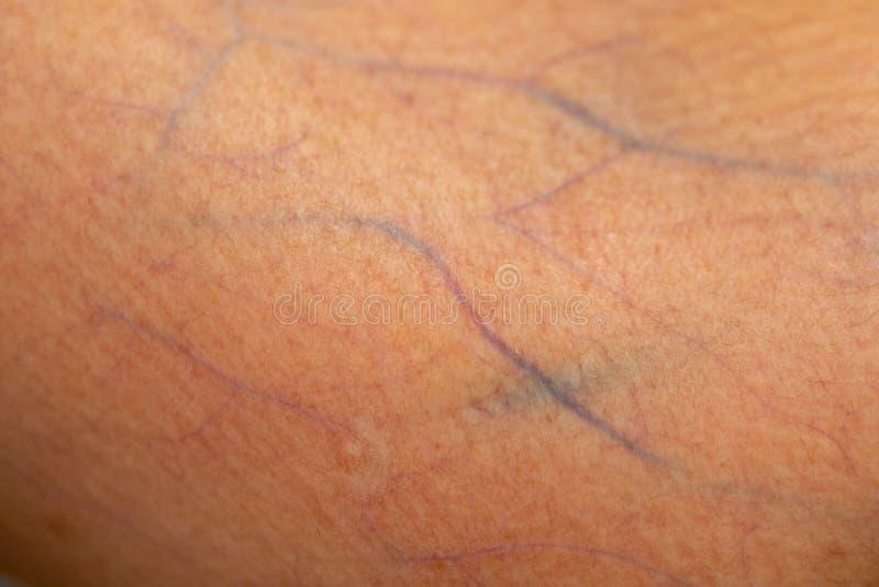 Una comprobación del tejido, nervios, tendones as mano imágenes de archivo libres de regalías