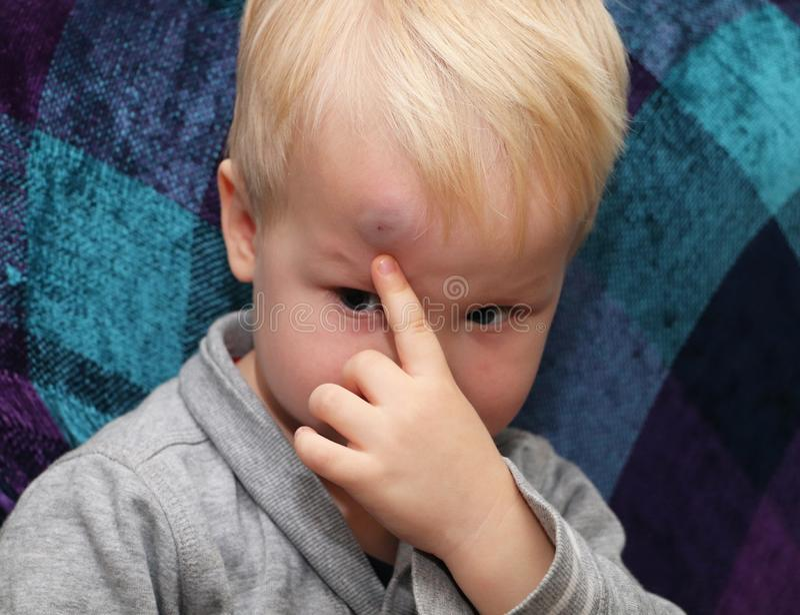 Una contusión grande en la frente de un niño pequeño foto de archivo