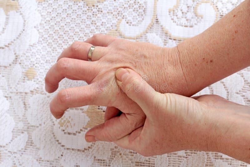 Una donna con la malattia del ` s di Parkinson ha suo stringere delle mani immagine stock