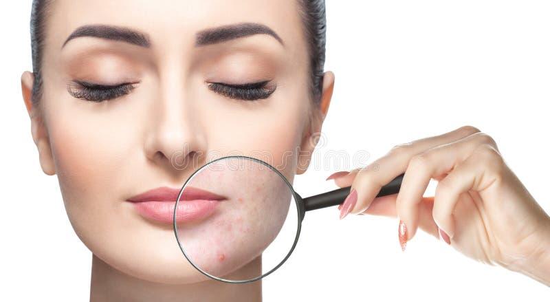 Una donna tiene una lente d'ingrandimento vicino al fronte e mostra la pelle di problema immagine stock libera da diritti