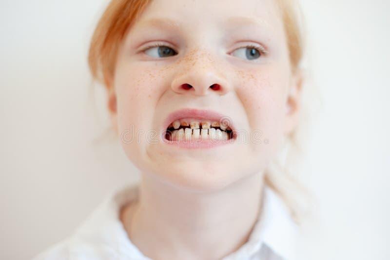 Una muchacha con la carie dental imagenes de archivo