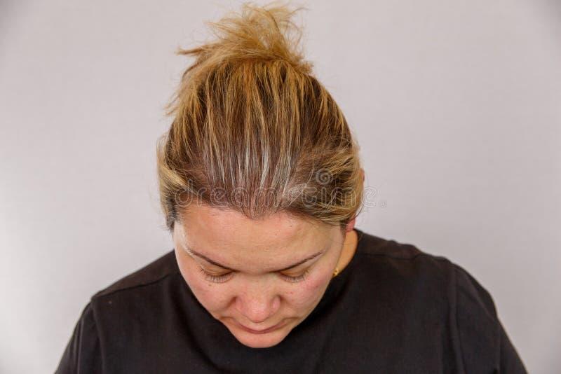 Una mujer caucásica de 38 años con la interrupción gorda y hormonal muestra su cara con problemas de piel En un backg aislado lig fotografía de archivo