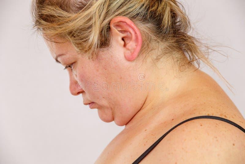 Una mujer caucásica de 38 años con la interrupción gorda y hormonal muestra su cara con problemas de piel En un backg aislado lig fotografía de archivo libre de regalías