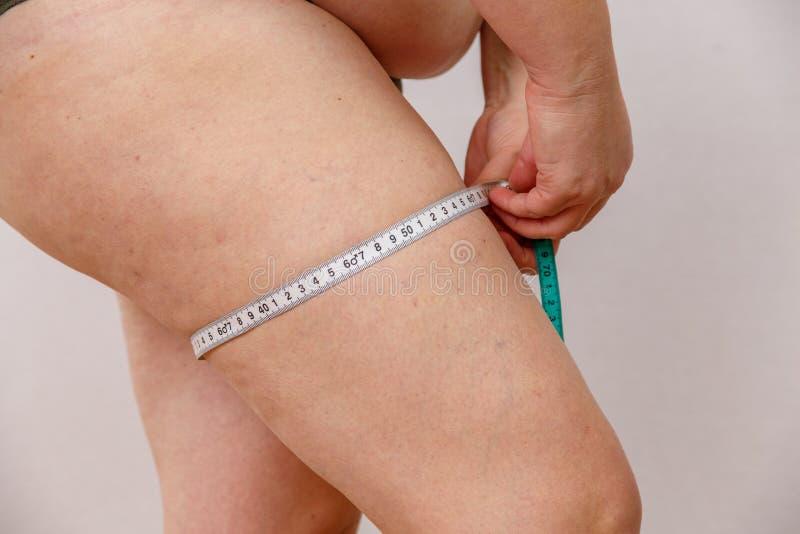 Una mujer caucásica de 38 años con medidas gordas y hormonales del fracaso su cuerpo En un fondo aislado ligero Concepto para imágenes de archivo libres de regalías
