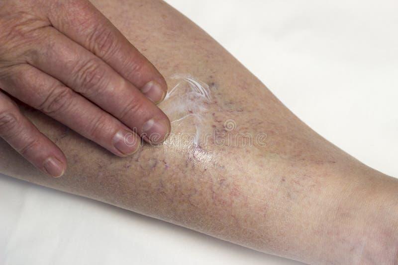 Una mujer está frotando su pierna con el ungüento de las varices imagen de archivo libre de regalías