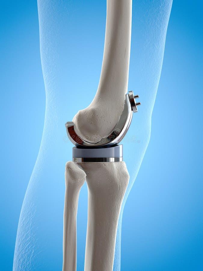 Una sostituzione del ginocchio royalty illustrazione gratis