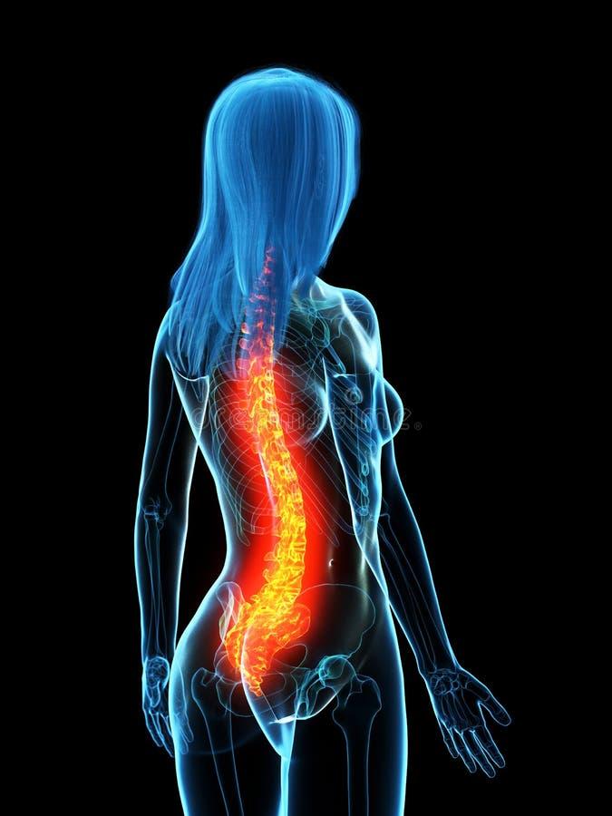 Una spina dorsale dolorosa illustrazione vettoriale