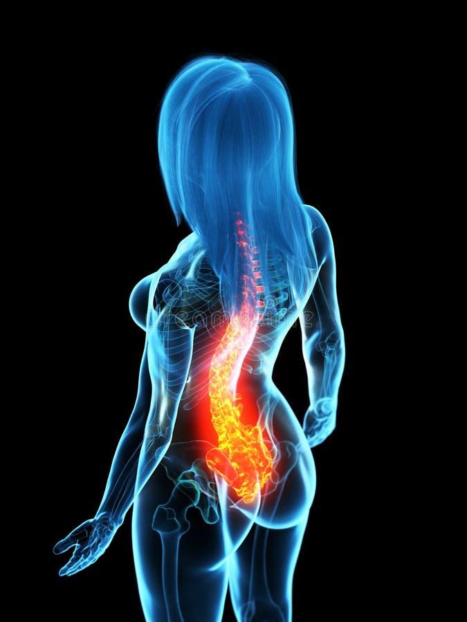 Una spina dorsale dolorosa illustrazione di stock