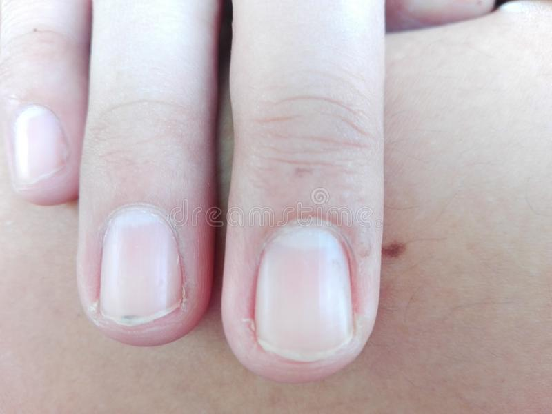 Uncut nails. This is a photo of a man& x27;s uncut nails stock photos
