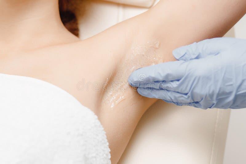 Underarm женщина обработки удаления волос лазера Отростчатое применение геля стоковое фото rf