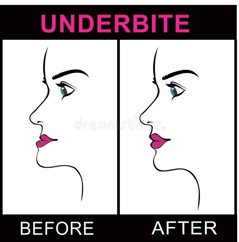 Underbite. Maxillofacial surgery jaw underbite procedure royalty free illustration