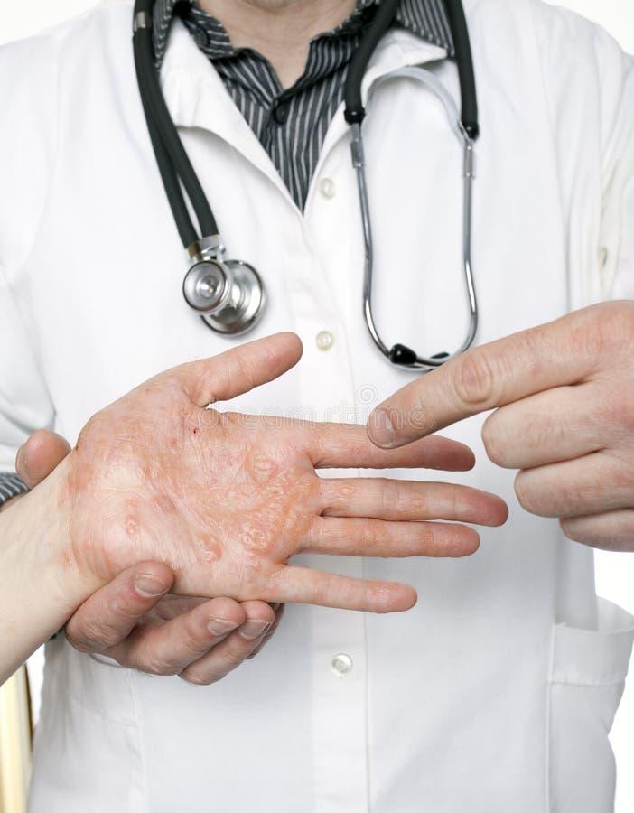 Undersökande hand för hudspecialist med strängt eksem royaltyfri foto