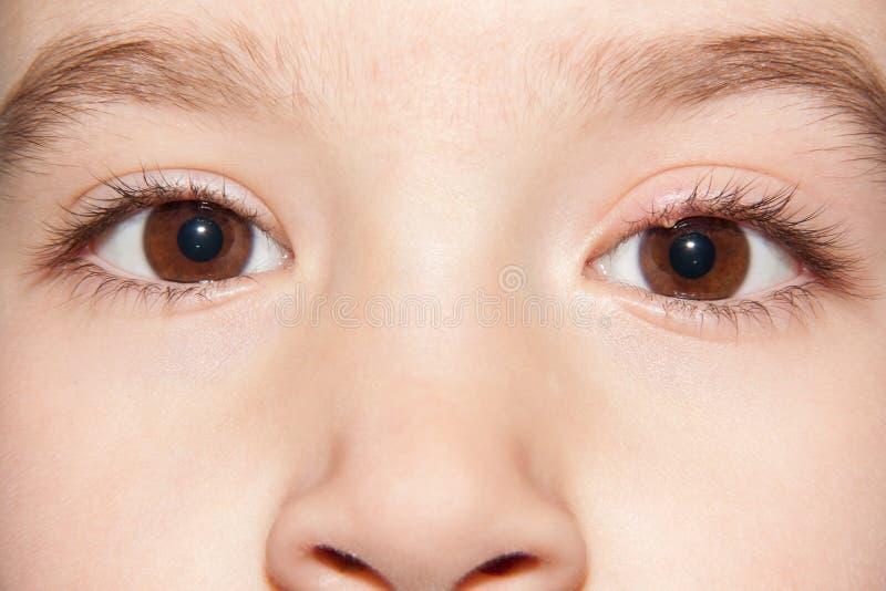 Une étable d'infection de l'oeil - inflammation supérieure de paupière photos stock