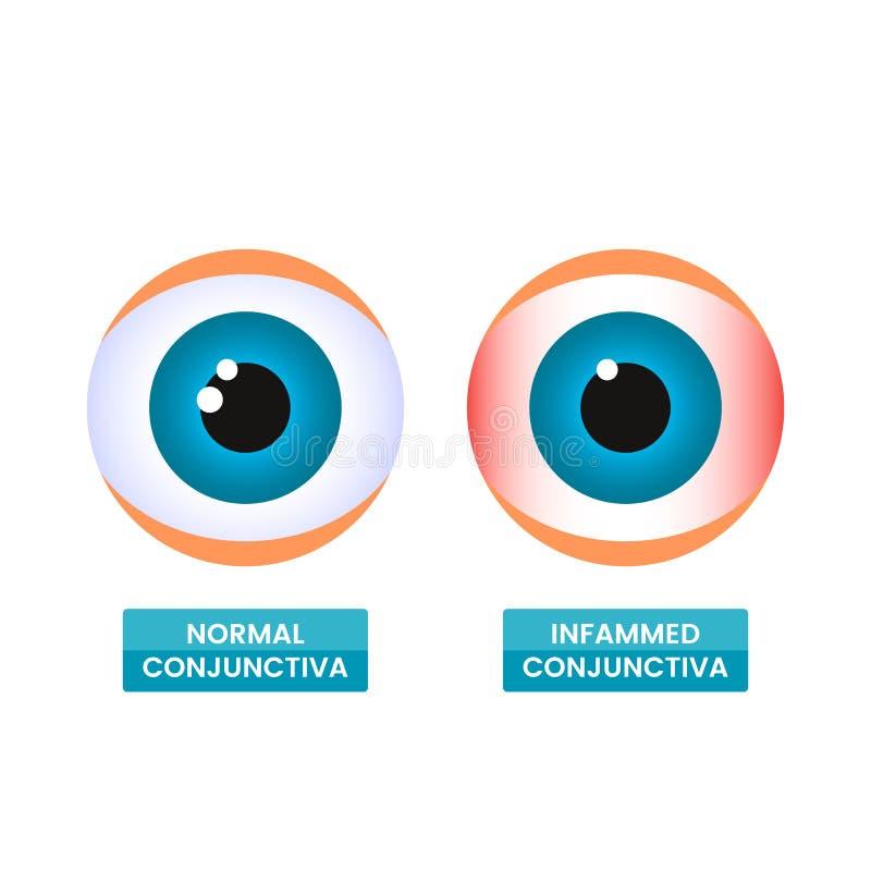Une conjonctive enflammée saine et malade de l'oeil Le concept de la maladie, allergies saisonnières, rougeur d'oeil Vecteur plat illustration libre de droits