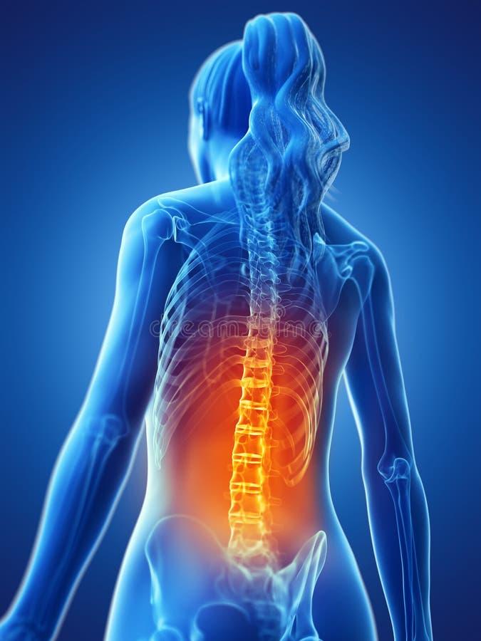 Une femme ayant un dos douloureux illustration stock