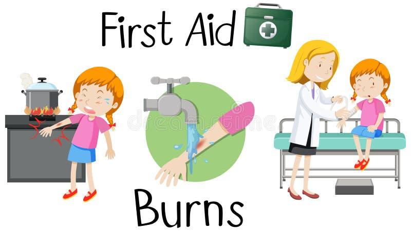 Une fille avec des premiers secours de bras de brûlure illustration libre de droits