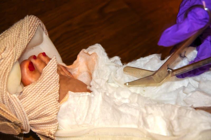 Une infirmière avec les gants en plastique pourpres coupe un bandage moulé d'une cheville avec le pied et les orteils montrant -  images stock