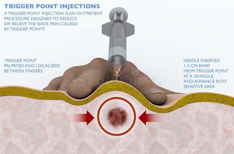 Une injection de point de déclencheur est une procédure de patient conçue pour réduire ou soulager les douleurs de dos provoquées illustration stock