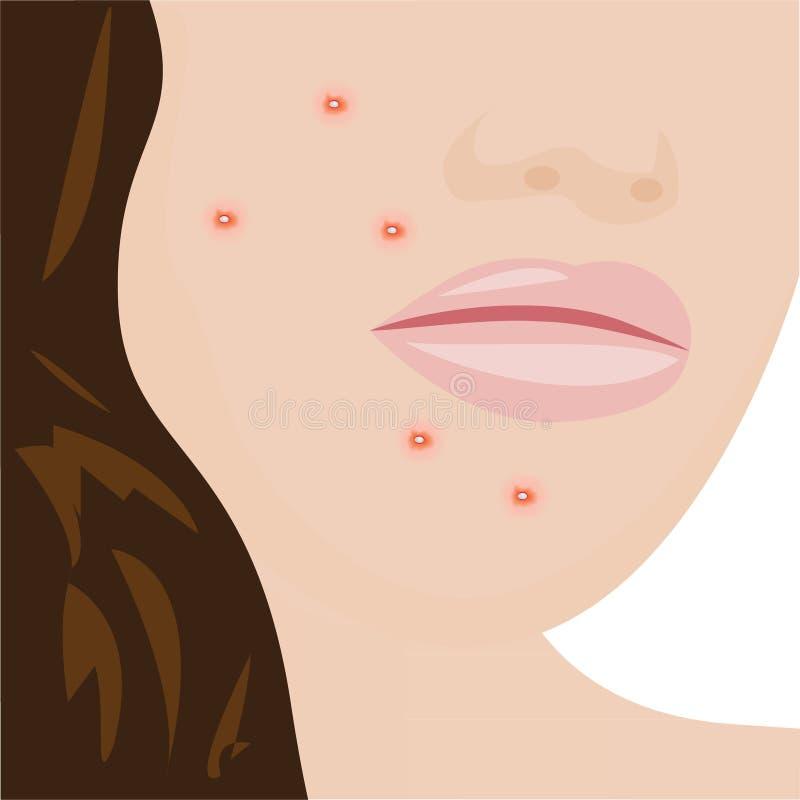 Une jeune femme ayant l'acn? illustration libre de droits