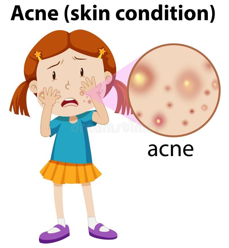 Une jeune fille ayant l'acné illustration de vecteur