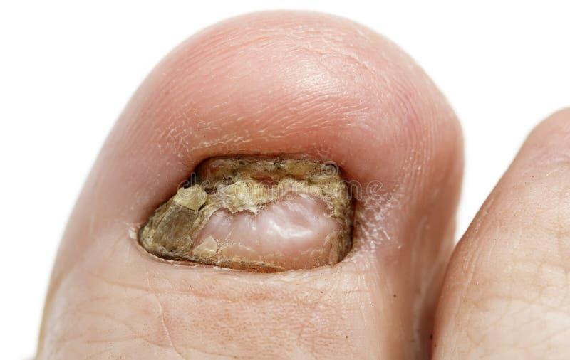Une maladie fongique de grand ongle de pied méchant grande photo libre de droits