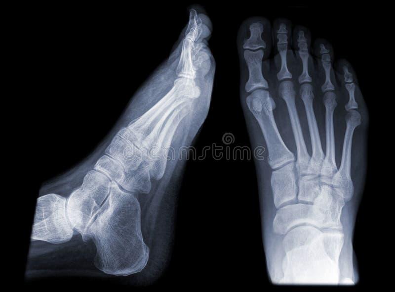 Une paire de pieds photos stock